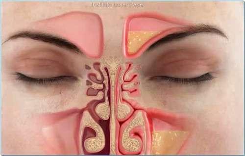 Como eliminar a congestão nasal rapidamente