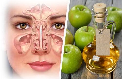 Remédios naturais para combater a sinusite