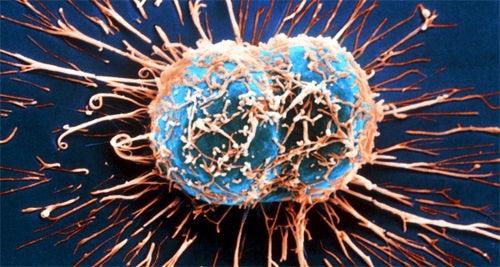 sintomas de câncer