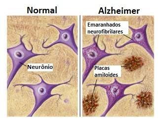 Alzheimer-326x252