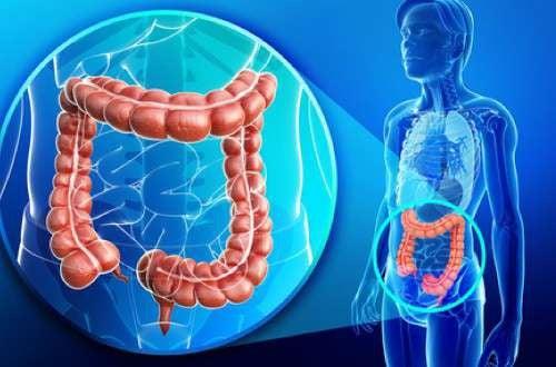 Excesso de peso e cólon inflamado: como tratar