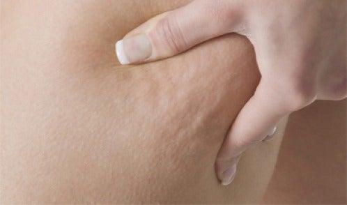 Celulite: 3 infusões medicinais muito eficazes para combatê-la!