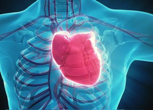 Coração sofrendo infarto