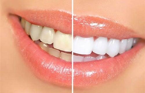 8 alimentos que deixam os dentes amarelos