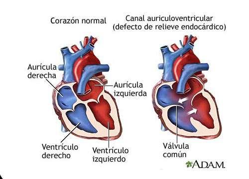 7 sintomas de um sopro cardíaco: conheça-os!