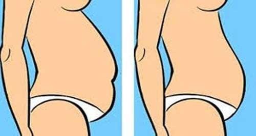 Que tipo de barriga você tem e como reduzi-la?