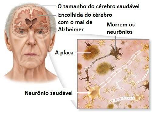 Dicas que podem reduzir o risco do mal de Alzheimer