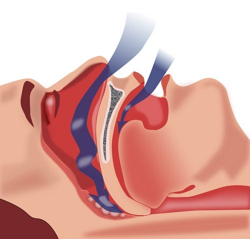 Tratamento natural para a apneia do sono