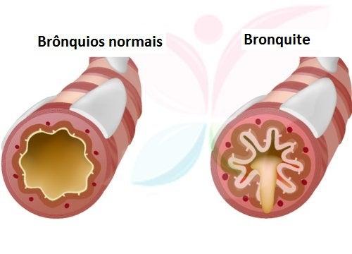 5 remédios efetivos para a bronquite