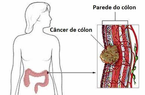 Sintomas do câncer colorretal em mulheres