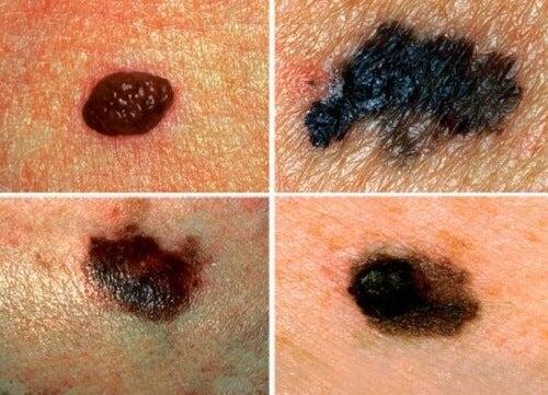 alterações na pele pode ser um dos sinais que seu corpo envia que algo não vai bem