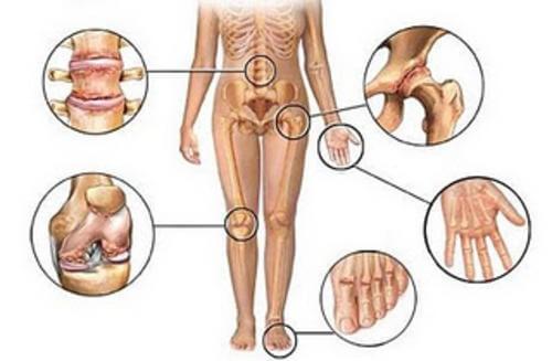 5 anti-inflamatórios naturais para tratar a dor articular