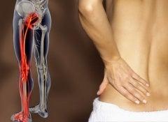 Exercícios para a dor ciática