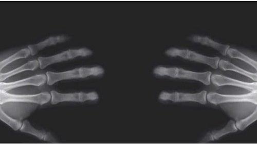 Isso é o que acontece ao estalar os dedos