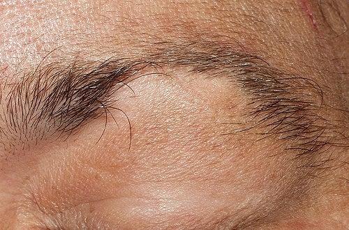 Alopecia em sobrancelhas e cílios: que tratamento seguir?