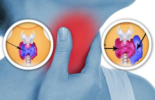 Anomalias-na-tiroide
