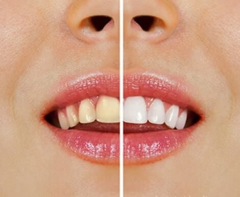 Clarear os dentes com sal