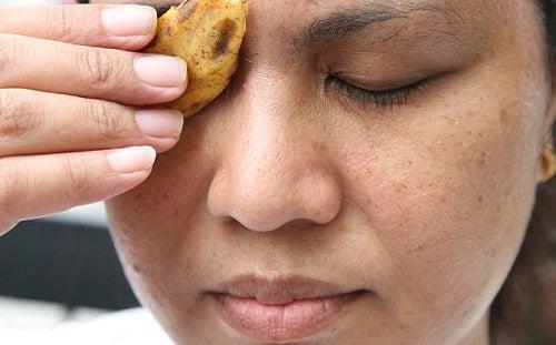 Casca de banana para eliminar verrugas