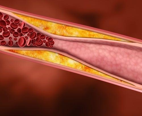 Figos reduzem o colesterol