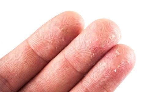 Não beber água suficiente pode causar eczema