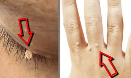 Remédios caseiros eficazes para eliminar as verrugas