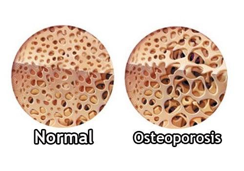 Osteoporose_-500x350