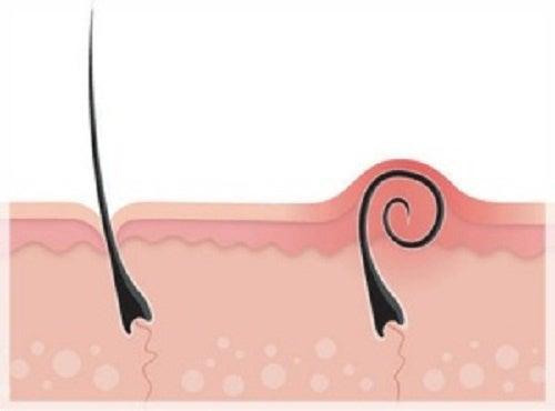 Pelo encravado depois da depilação. Como tratá-lo?