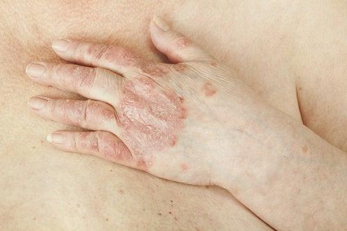 A psoríase pode ser curada?