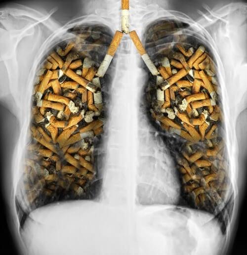 Câncer de pulmão pelo cigarro