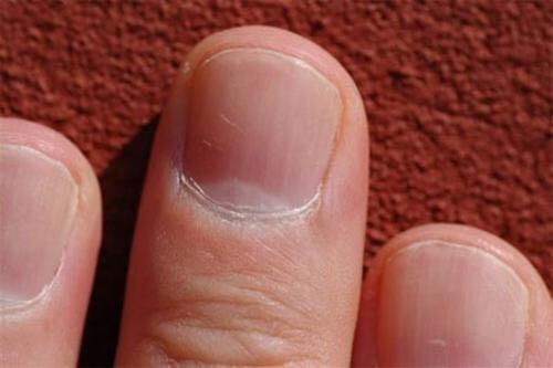 Você sabia que o estado das unhas pode dizer muito sobre a sua saúde?