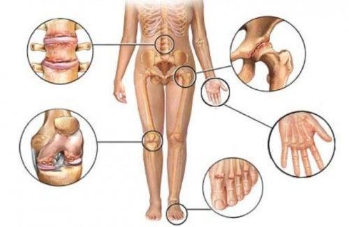 Diferenças entre artrite, artrose e osteoporose que valem a pena conhecer