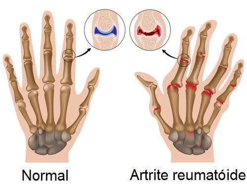 Não beber água o suficiente ajuda no aparecimento de artrite