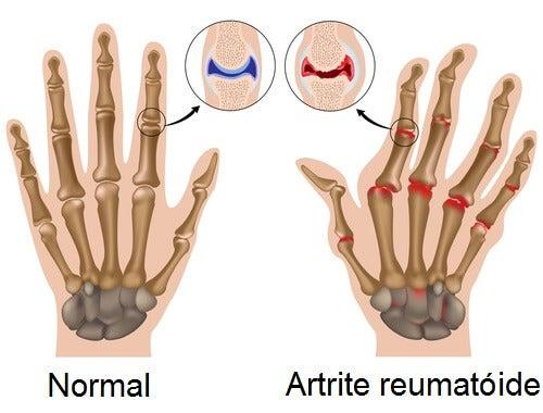 7 passos para superar a artrite reumatoide