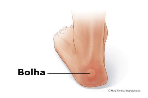 bolhas nos pés