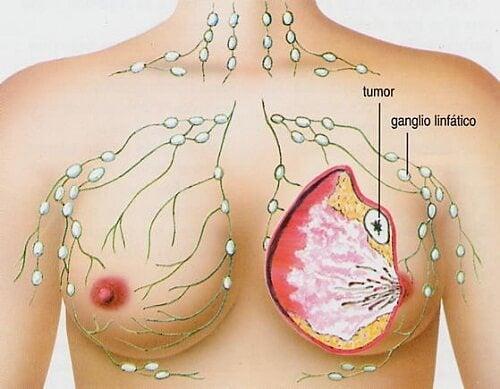 Os 5 tipos de câncer mais frequentes na mulher