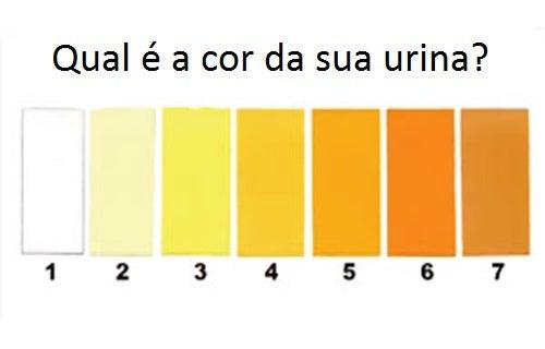 tipos de urina