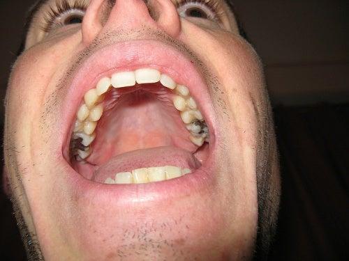 dentes-e-caries