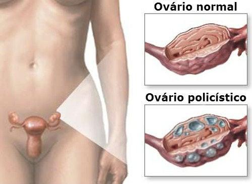 Tratamento natural para a síndrome do ovário policístico