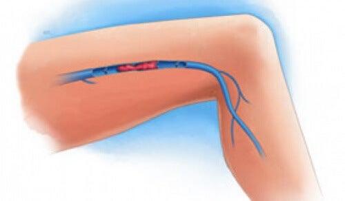 Sintomas de uma trombose venosa nas pernas