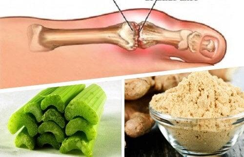 Remédio com gengibre e salsão para eliminar os cristais de ácido úrico