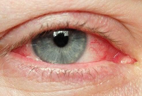 Olhos irritados - Dicas naturais para esse problema