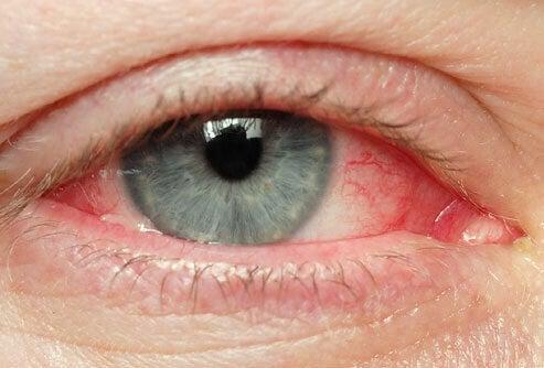 Dicas naturais para tratar olhos irritados