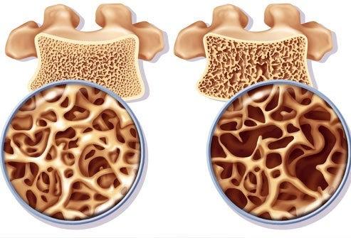 Exercícios para prevenir e tratar a osteoporose