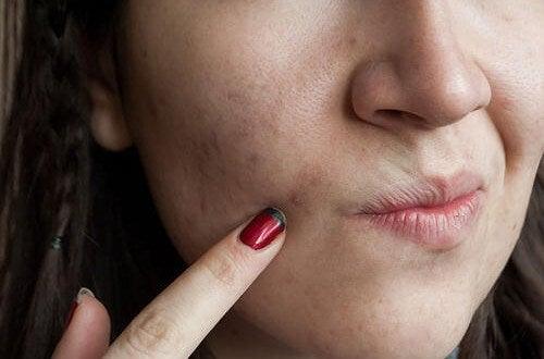 8 alimentos benéficos para quem quer uma pele sem impurezas