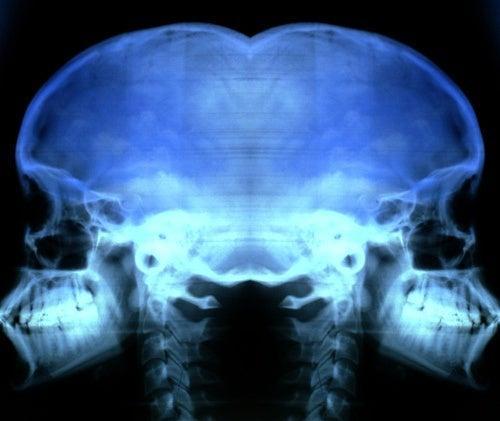 Remedios-caseros-para-la-osteoporosis-500x421