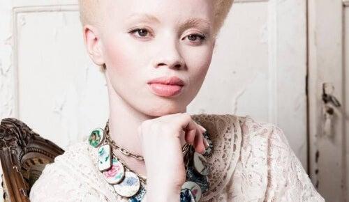 Albinismo: o comovente caso da modelo Thando Hopa