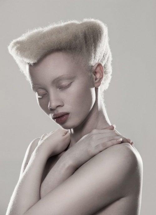 albinismo-500x689