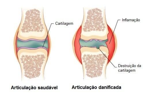 Remédio que ajuda a combater as dores causadas pela artrite