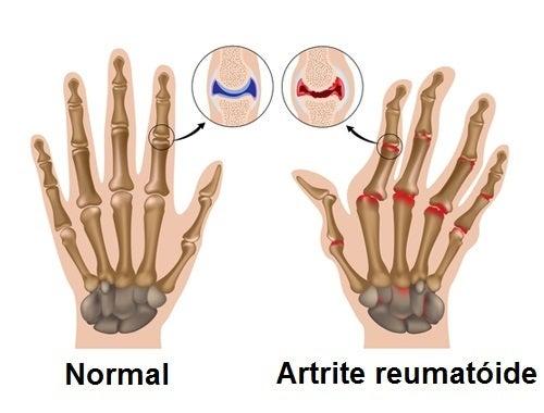artrite1