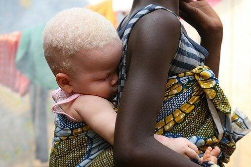 A maldição de ser albino na África
